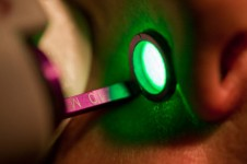 KTP laser for blood vessels and age spots